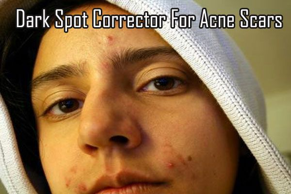 Dark Spot Corrector For Acne Scars