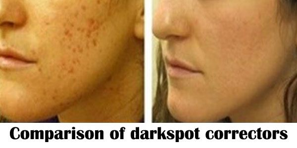 Comparison of Best Dark Spot Correctors in Market