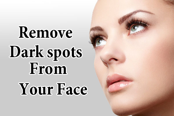 Natural Methods To Remove Dark Spots From Your Face