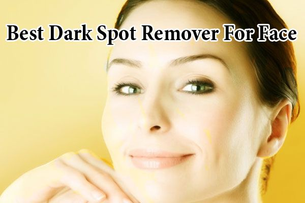 Best Dark Spot Remover for Face